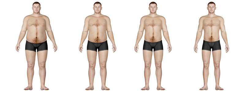 Bariatric Surgery Image
